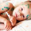 Как лечить ветрянку  у детей