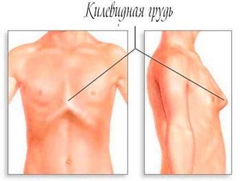 deformaciy-grudi--u--rebenka