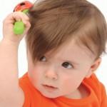 ochagovaya alopeciya y detei prichini1