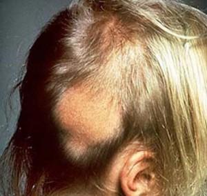 ochagovaya alopeciya y detei prichini4