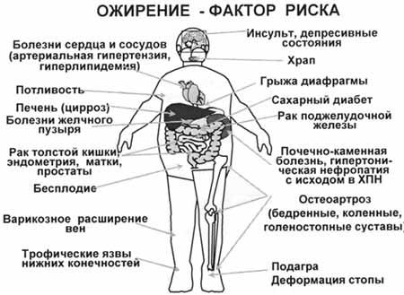 ожирения у детей